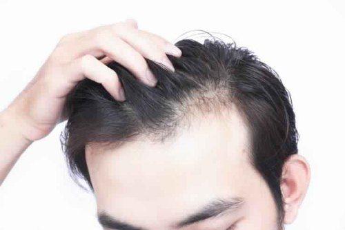hair loss treatment for men in pune